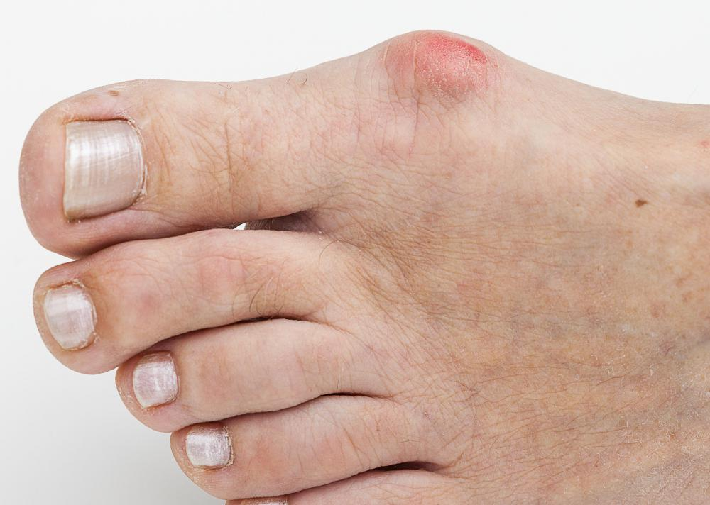 Podiatrists can treat bunions.