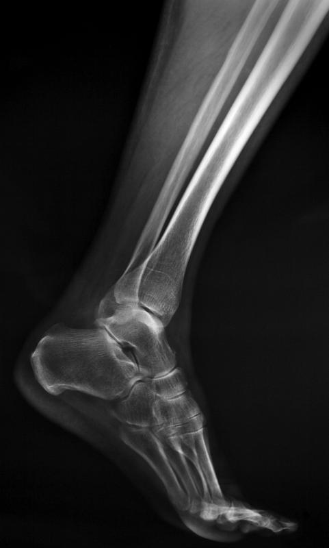 Orthopedists perform x-rays and other imaging procedures.