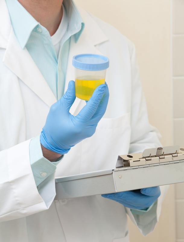 A medical lab tech holding a urine sample.