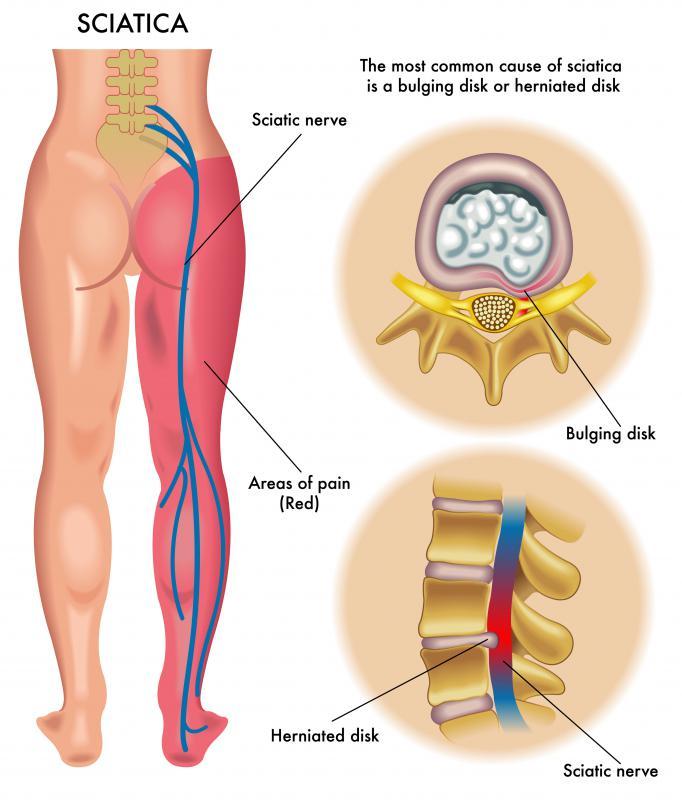Naprapathy therapy may offer relief for problems with the sciatic nerve, which can cause pain and numbness down the leg.