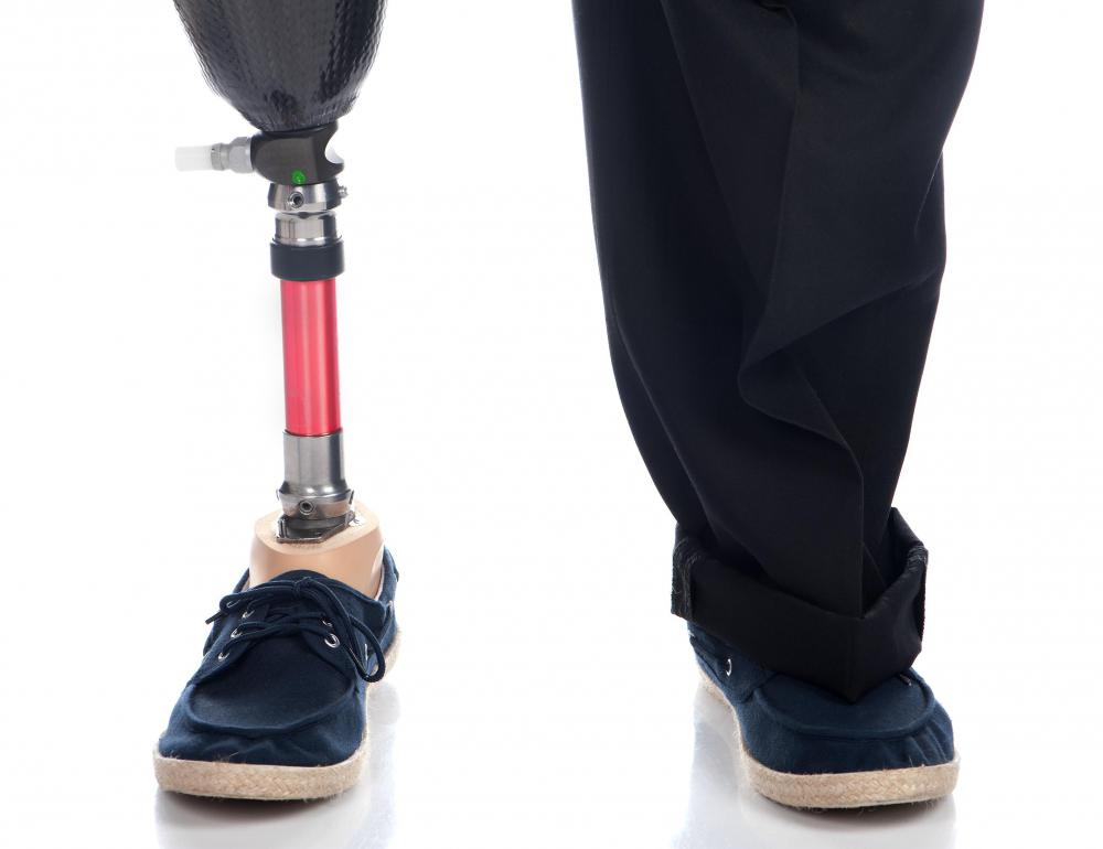 Some orthopedists specialize in prosthetics.